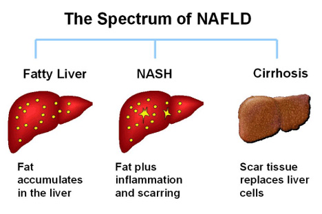 how diet causes nafld