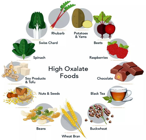 Foods That Are High In Oxalic Acid
